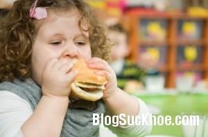 beo 300x198 Bệnh béo phì, thừa cân ở trẻ em