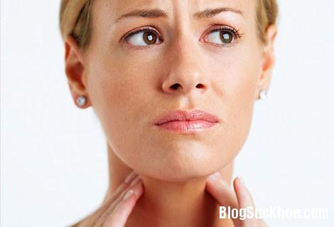 viemhong Các loại bệnh viêm họng