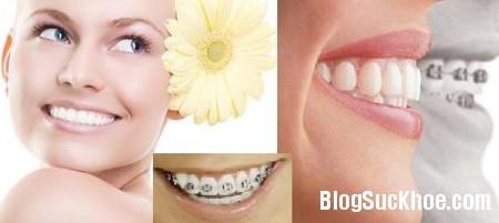 chinh nha nieng rang Những điều cần biết về niềng răng