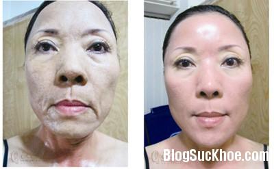 da 7 dấu hiệu cho thấy da đang bị hư tổn và cách để có làn da khỏe mạnh