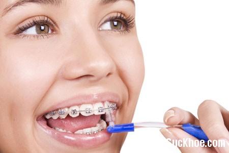 rang2 Những điều cần biết về niềng răng