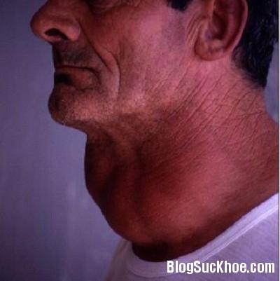 buou co Nguyên nhân và triệu chứng bệnh bướu cổ