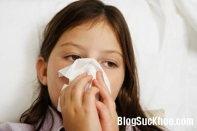 cam cum Những cách đơn giản đập tan bệnh cảm cúm