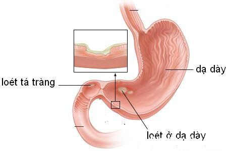 da day Tìm hiểu về loét dạ dày tá tràng