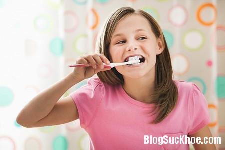 danh rang Khi niềng răng bạn cần chú ý điều gì?
