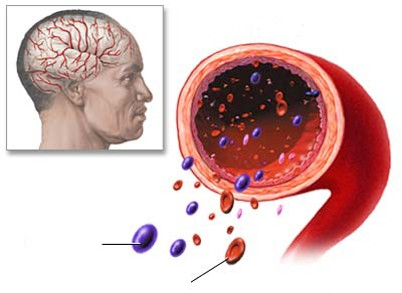 dau nua dau Triệu chứng và nguyên nhân gây đau nửa đầu