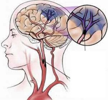 nao Dấu hiệu nhận biết và nguyên nhân gây xuất huyết não
