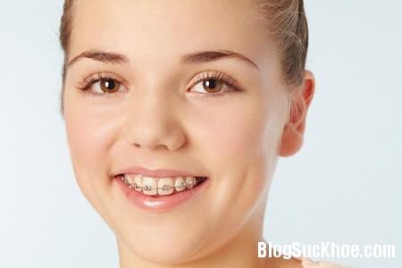 nieng rang Khi niềng răng bạn cần chú ý điều gì?