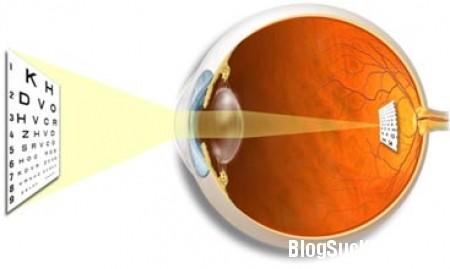 v1 Nguyên nhân và triệu chứng của viễn thị