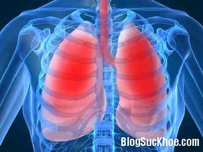 viem phoi Nguyên nhân mắc viêm phổi