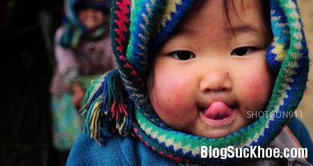 be21 5 cách trị nẻ cho bé má cà chua