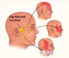 dau9 Đau nửa mặt, bệnh dễ nhầm với các chứng bệnh khác