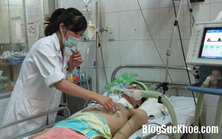 phoi11 Viêm phổi ở người nghiện rượu