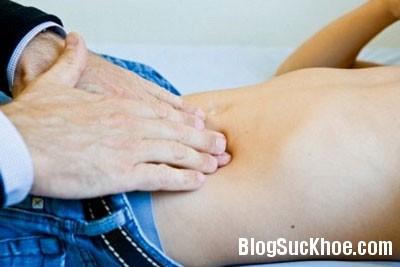 soi Nguyên nhân và triệu chứng gây sỏi bàng quang