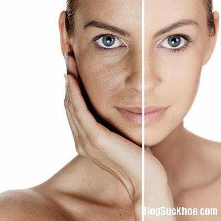 Làm gì khi da bạn bị chảy xệ?