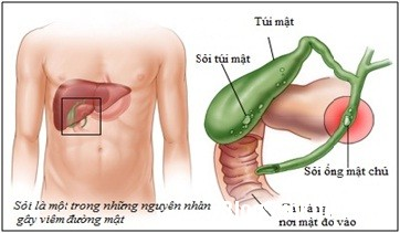 soi mat Mẹo đơn giản giúp ngăn ngừa sỏi mật