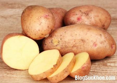 khoai tay1 Thận trọng với 5 loại rau quả có nguy cơ gây độc