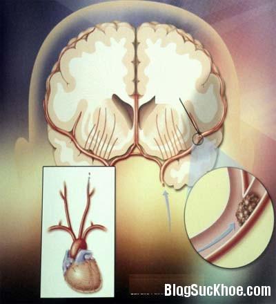 mach Một số bài trà thuốc tốt cho người tăng huyết áp