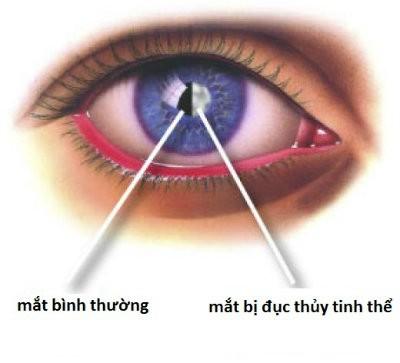 mat 4 bệnh ở mắt có thể gây ra mù lòa