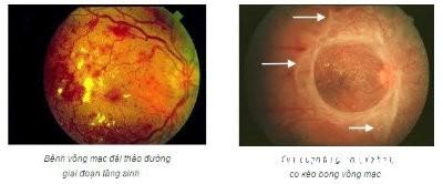 mat1 4 bệnh ở mắt có thể gây ra mù lòa