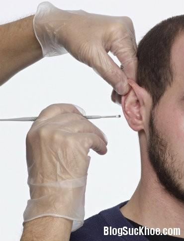 tai Các bước vệ sinh tai an toàn