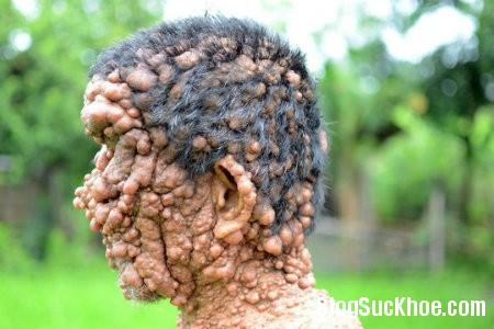 benh1 Nổi u khắp người do bệnh lạ