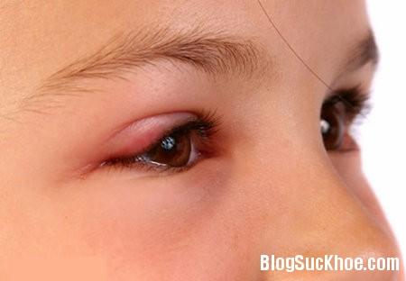 mi Viêm bờ mi mắt   Căn bệnh không nên chủ quan