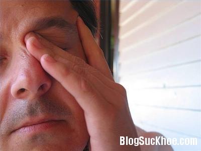 tai bien Cách sơ cứu người bị tai biến mạch máu não