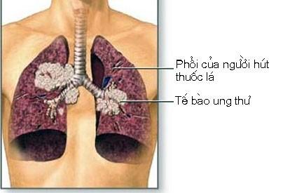 ungthuphoi Những dấu hiệu cảnh báo ung thư phổi sớm