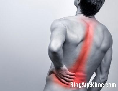 8 thói quen xấu khiến bạn đau lưng