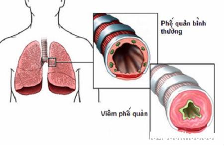 phe quan Triệu chứng bệnh viêm phế quản cấp