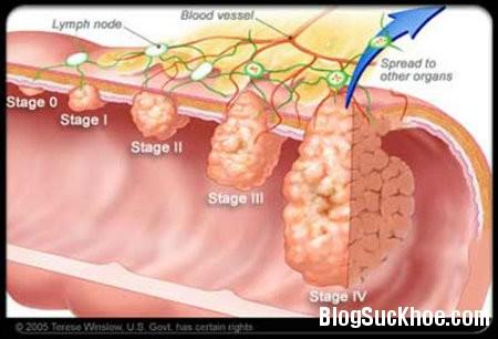 ung thu1 Các giai đoạn ung thư và một số bệnh ung thư phổ biến