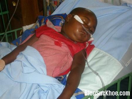 viem cau than1 Dấu hiệu nhận biết trẻ bị viêm cầu thận cấp