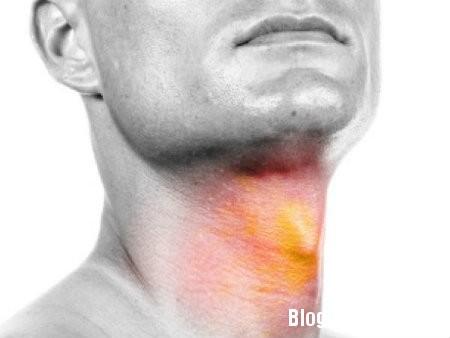 hong 5 nguyên nhân chủ yếu gây ung thư họng