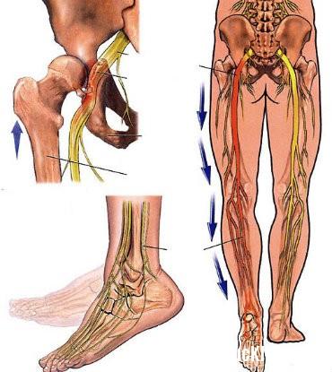 than kinh Đau thần kinh tọa và bệnh cột sống thắt lưng