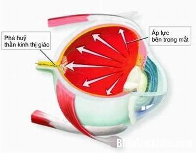 23 Bệnh glôcôm, phát hiện sớm tránh mù lòa