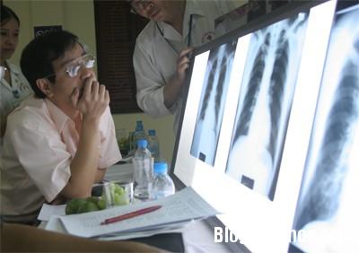 benh6 Dấu hiệu nhận biết bệnh bụi phổi