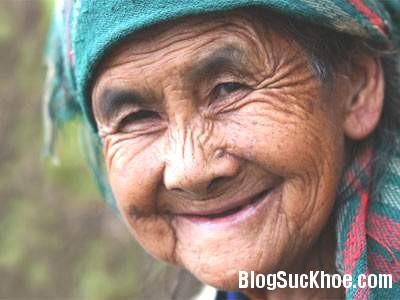 da11 Một số bệnh ngoài da thường gặp ở người cao tuổi