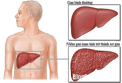 gan2 Cách phòng chống bệnh gan