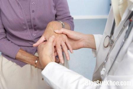 khop2 Phòng ngừa và điều trị thoái hóa khớp