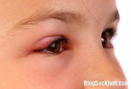 mat Các dấu hiệu nhận biết mắt bé có vấn đề