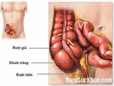 ruot thua Biến chứng khi cắt ruột thừa