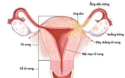 tc Những điều chị em cần lưu ý khi cắt bỏ tử cung
