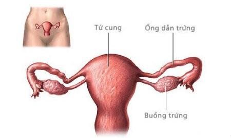 triet san Những vấn đề cần quan tâm khi triệt sản ở nữ