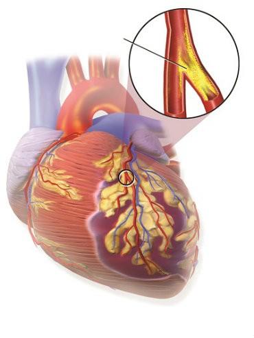 dau tim1 Đột quỵ có phải là cơ đau tim?