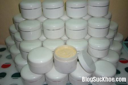 kem2 Vào bệnh viện vì kem siêu trắng da thần tốc
