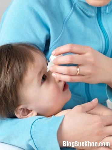 mat2 5 điều mẹ cần làm khi bé bị đau mắt đỏ