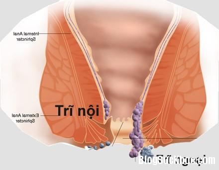 tri11 Phương pháp chữa bệnh trĩ ngoại