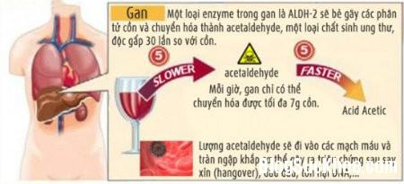 12 Nguyên nhân gây đau đầu sau khi uống nhiều bia rượu