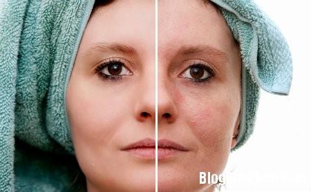 nam9 Những vấn đề về da thường gặp ở phụ nữ